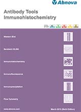 Abnova Immunohistochemistry