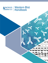 Novus Biologicals Western Blot Handbook